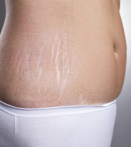 Stretch marks treatment in Dehradun, Procedure, Benefits, Cost