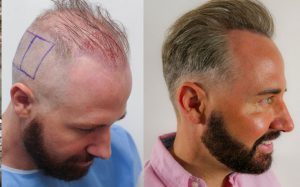Hair loss Treatment In Dehradun, Causes, Types, Therapies